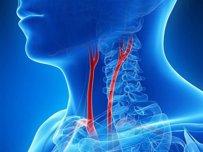 dt_150115_carotid_arteries_800x600