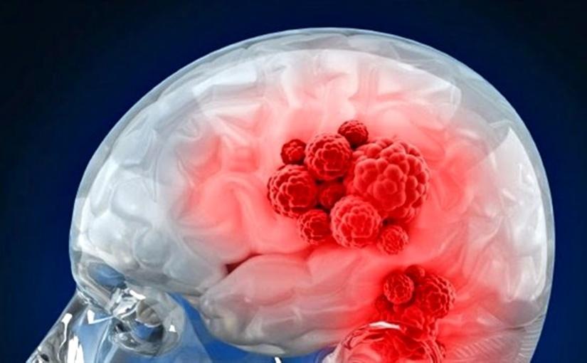 Tipos de TumoresCerebrales