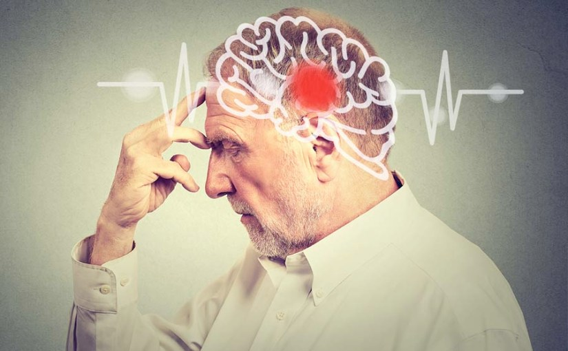 Evite un accidente cerebrovascular con estosconsejos