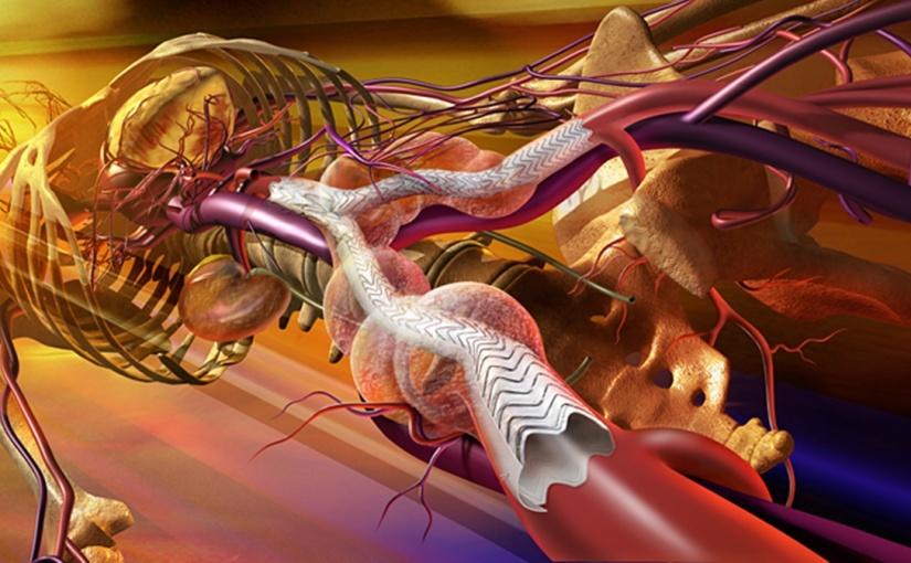 Cirugía Endovascular: Cirugía desde el interior de los vasossanguíneos