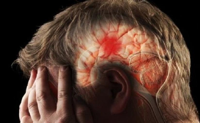 Hemorragia cerebral: causas, síntomas ytratamientos
