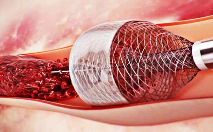 Nuevas guías para el manejo de los ACVs prolongan periodo de elegibilidad para trombectomía hasta 24horas