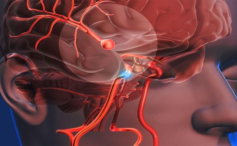 Síntomas del aneurismacerebral